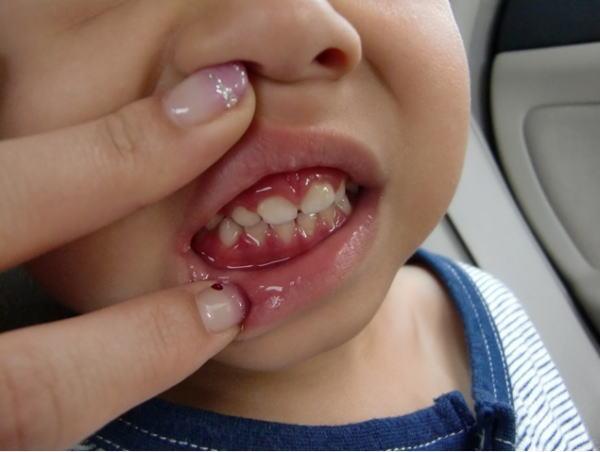 ヘルペス性口内炎は、ウィルス性口内炎の一種となります。これは単純ヘルペスウィルスが感染することで、口の中に炎症を起こすのが原因となり、特に生後6ヶ月以降の